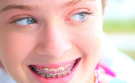 plano-odontológico-prevident-platinum